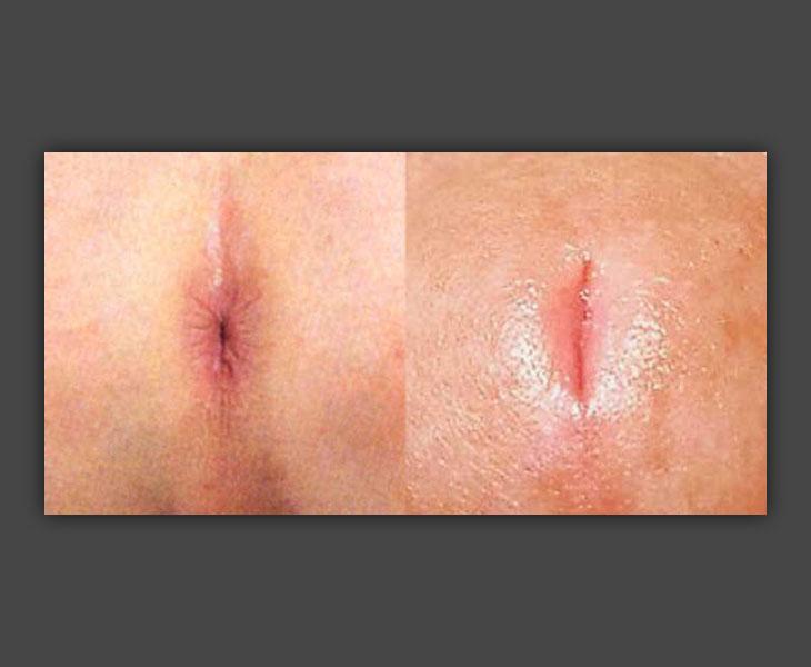 More Lips: Labia